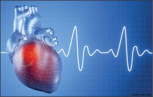 cardiac problem